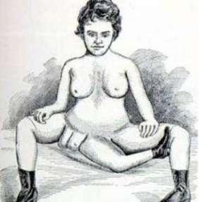 Blanche Dumas, femme à deux vagins