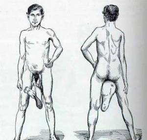 Juan Baptista dos Santos, homme à deux pénis