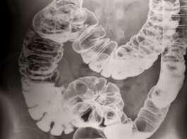 X-ray porn : le sexe vu de l'intérieur