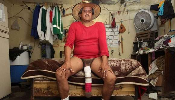 Roberto Esquivel Cabrera, l'homme au plus long pénis du monde